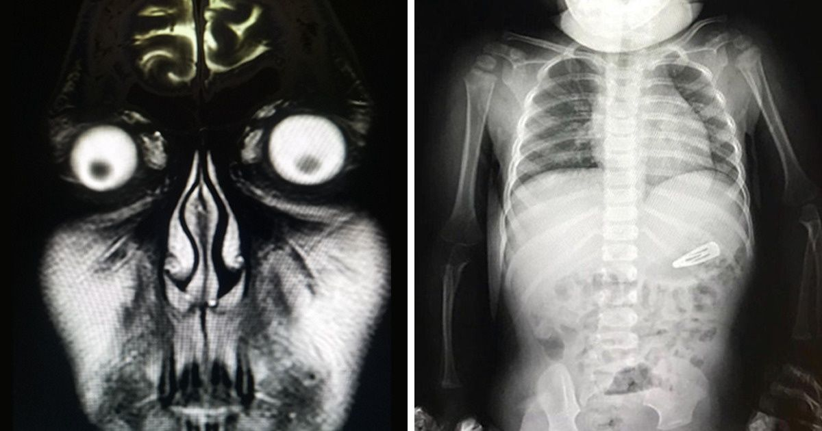 Cool X Ray Images