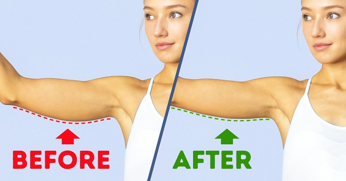 6Brilliant Exercises for Beautiful Arms