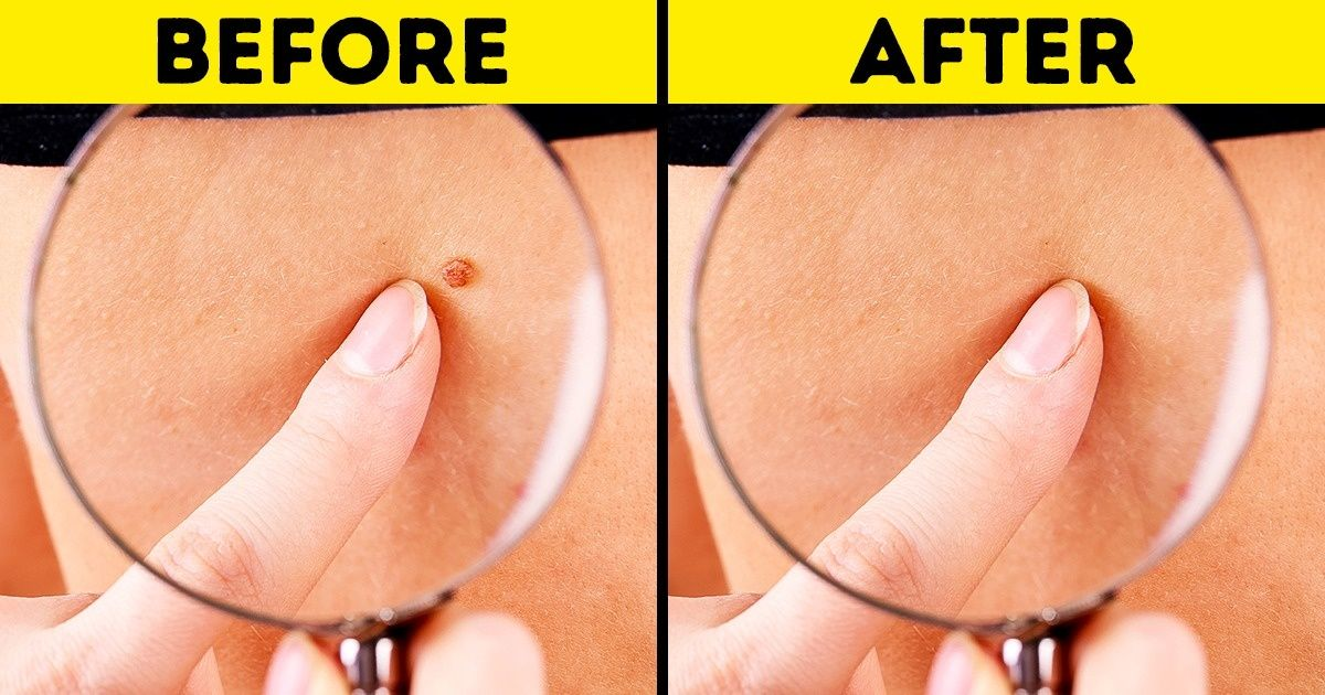 8 Effective Ways To Remove Skin Tags