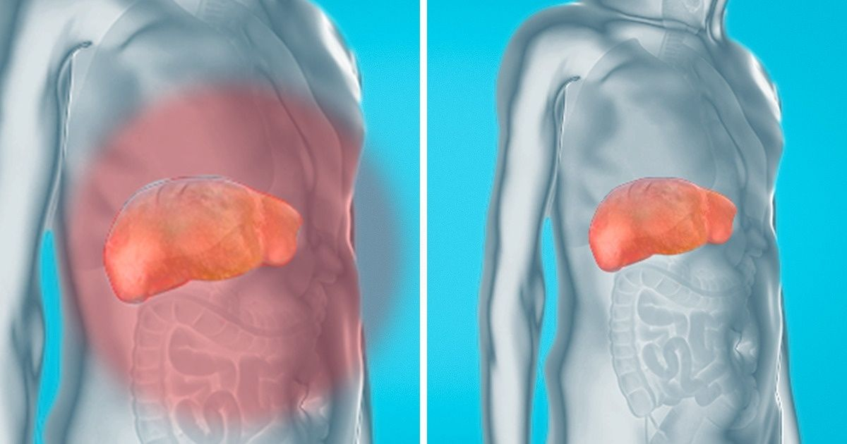 How toRemove Toxins From Your Liver, Kidneys, and Bladder Naturally and Gently
