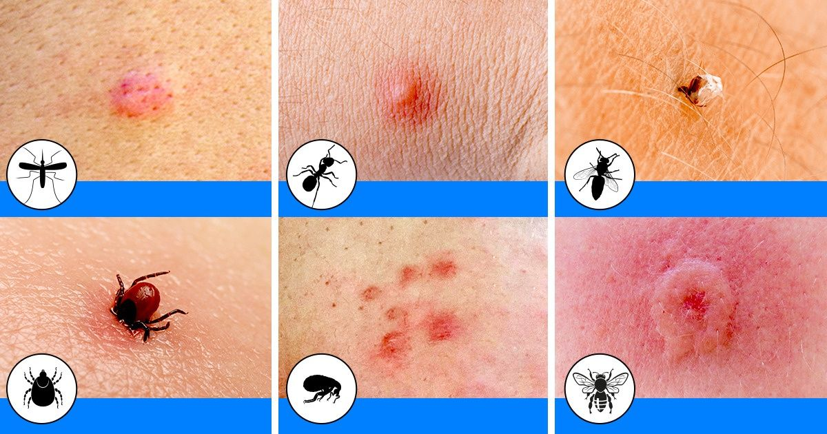 10 Bug Bites Anyone Should Be Able To Identify
