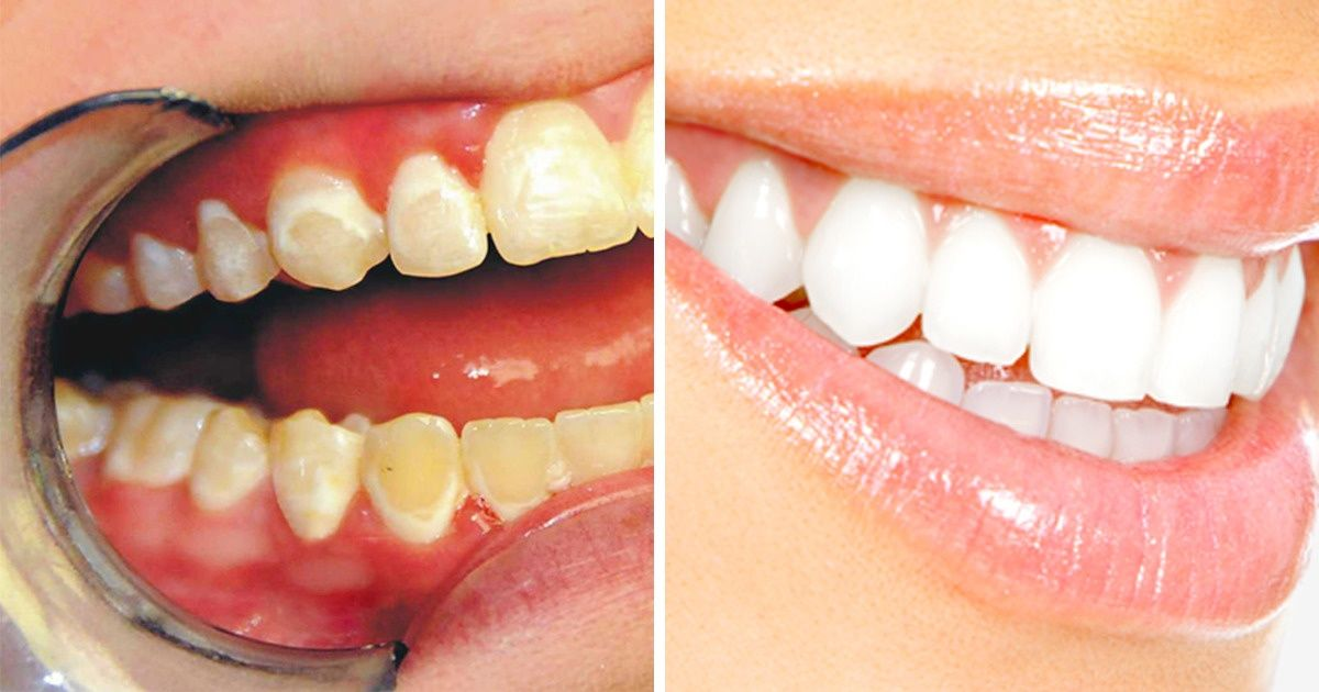 What Foods WeNeed toEat toKeep Our Teeth Healthy and White
