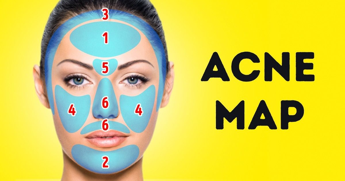 What the Acne Map Isand How ItCan Help You Get Rid ofHealth Problems
