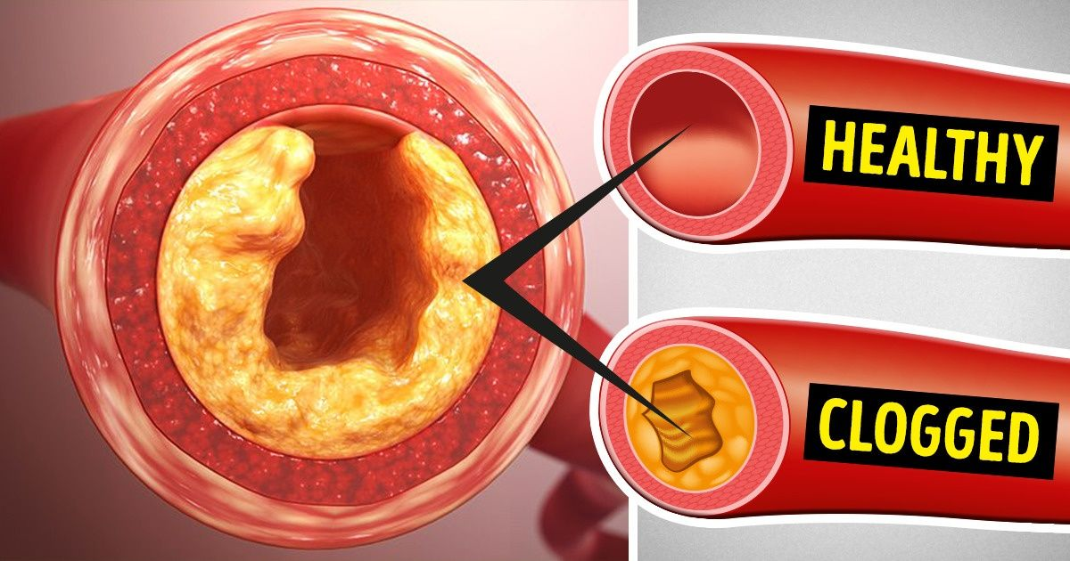 can you declog arteries with diet