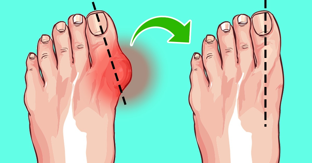 6 Easy Ways to Shrink Your Bunions Without Surgery