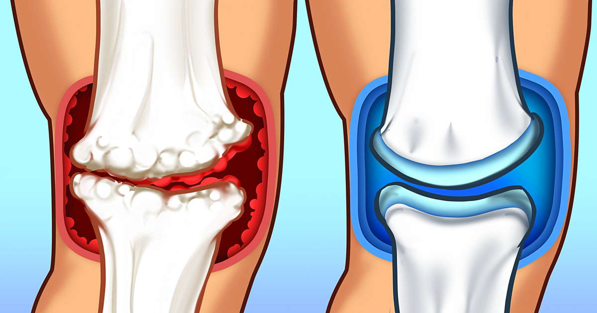 15 Foods You Need to Consume to Get Rid of Joint Pain