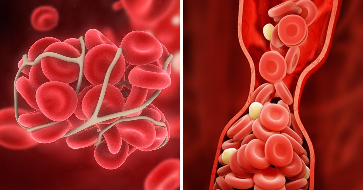 10 Ways to Prevent Blood Clots That Can Save Your Life