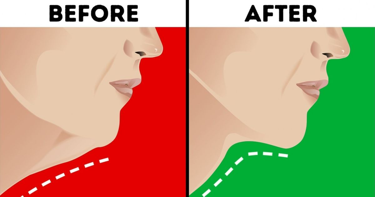 6 Effective Ways to Make Your Neck Look Younger