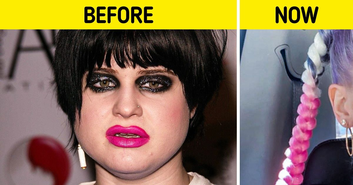13 Celebrities Who Underwent a Radical Makeover