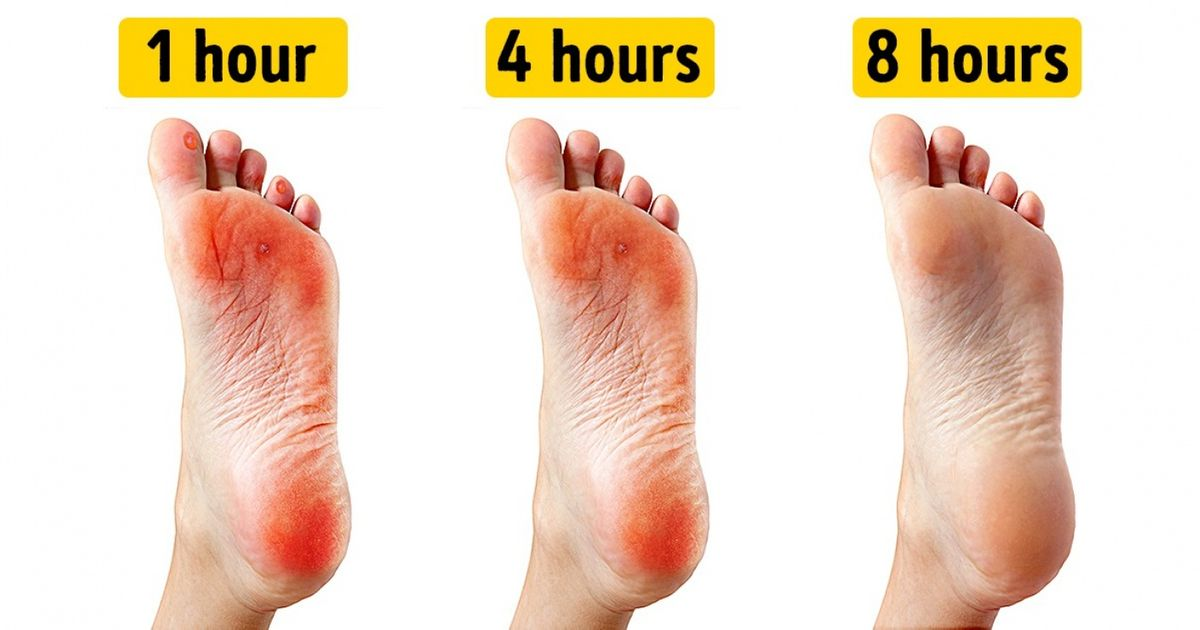 blister on sole of foot treatment