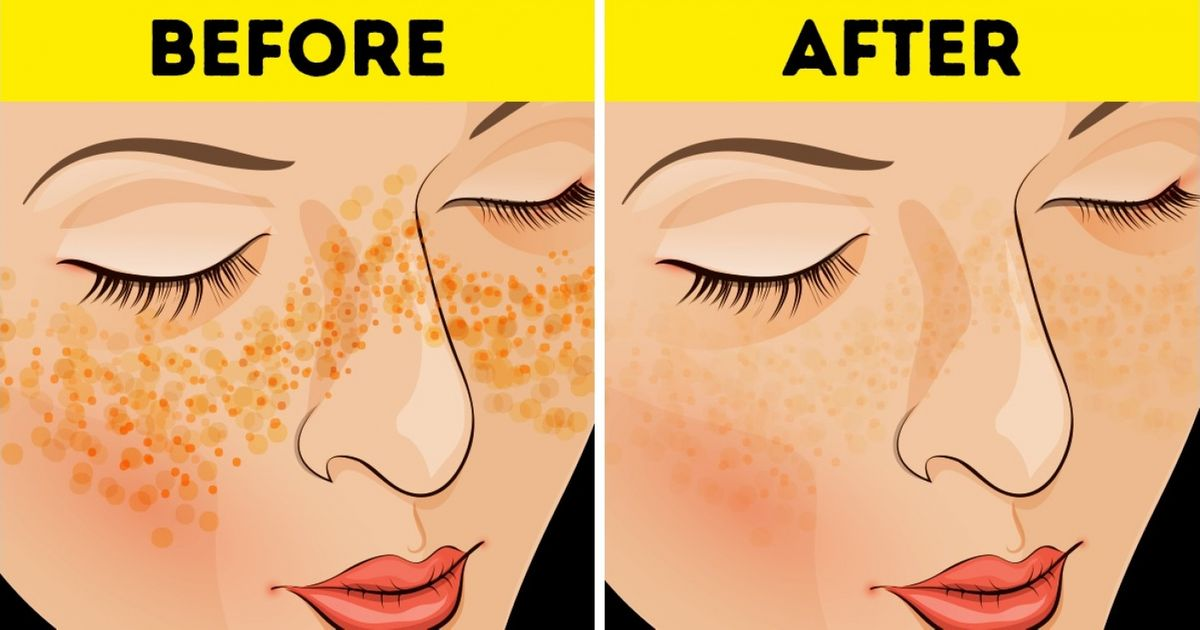To overnight of how spot scars rid get Dermatologist Tricks