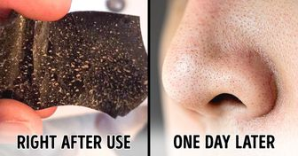 6 Things You Need to Know Before Using Pore Strips