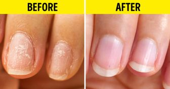 10 Home Remedies That Can Do Wonders for Your Nails