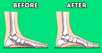 7 Exercises From Orthopedists to Increase Arch Height and Reduce Foot Pain