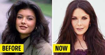 What Celebrities Looked Like Before They Tweaked Their Image