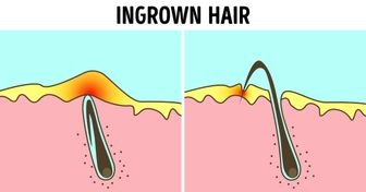 8 Signs You're Removing Hair Incorrectly