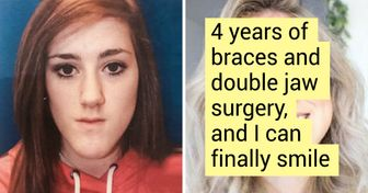 20+ People Who Know for Sure That Beauty Is a Cruel Mistress