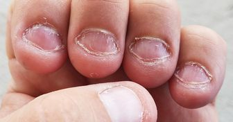 10 Tips to Stop Biting Your Nails Once and for All