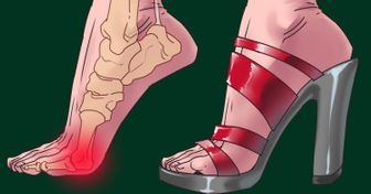 High Heels Not Only Damage Your Feet: There Are 3 Other Body Parts They're Also Dangerous For