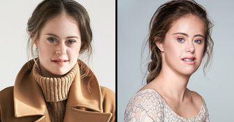 A Model With Down Syndrome Proves You're the Only One Who Can Define Beauty for Yourself