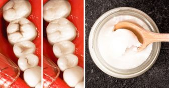 9Food Choices That Will Help You toConfidently Flaunt Your Teeth