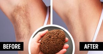 9 Ways to Make Your Arm Hair Less Noticeable