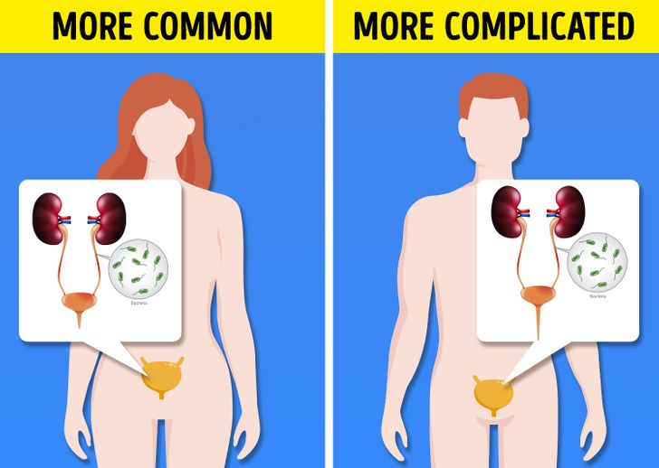 8 Diseases That Affect Men and Women Differently