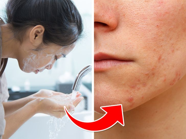 7 Skincare Mistakes That Can Give You Acne
