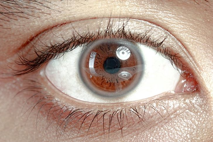 12Things Your Eyes Can Tell About Your Health