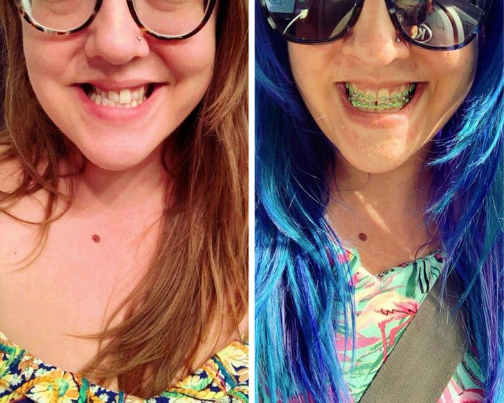 20 People That Got Plastic Surgery and Are Rocking Their New Looks