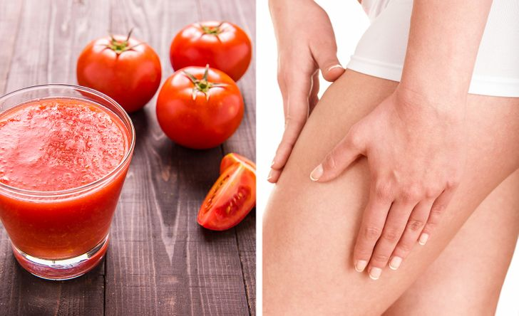 how to treat varicose veins at home