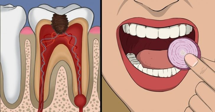 11Effective Things You Can DoToStop Wisdom Tooth Pain