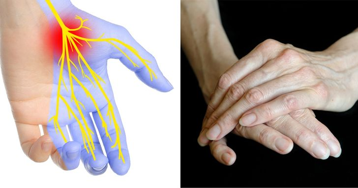 7Things Your Hands Can Tell About Your Health