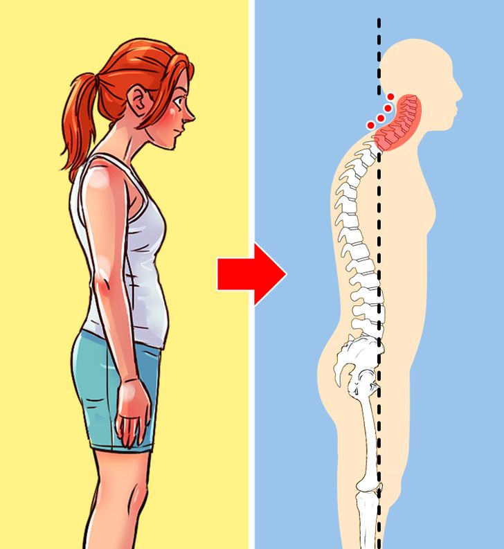 4 Types of Poor Posture and How to Fix Each of Them