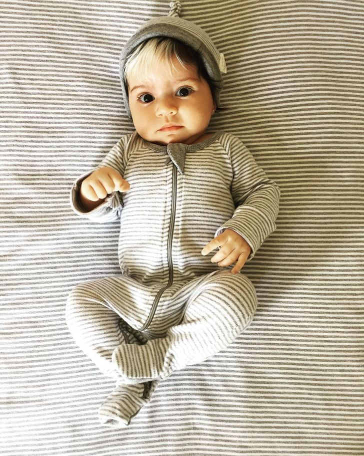 This Baby Girl Who Was Born With Gray Hair Is Proof That Our Flaws Make Us More Beautiful
