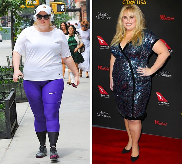 7Celebrities Who Rock Their Body Flaws