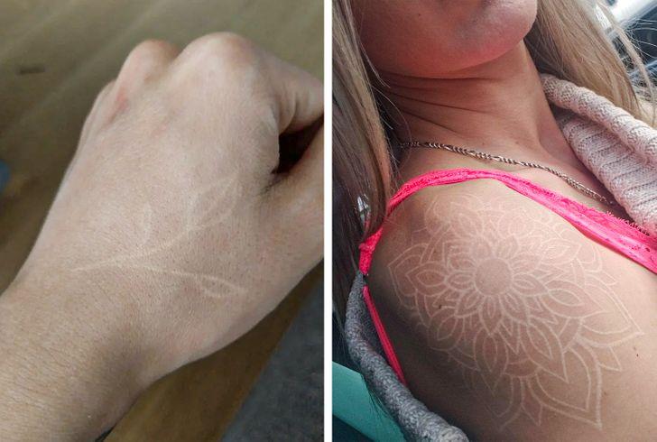 7 vecí, ktoré potrebujete vedieť pred získaním bieleho tetovania