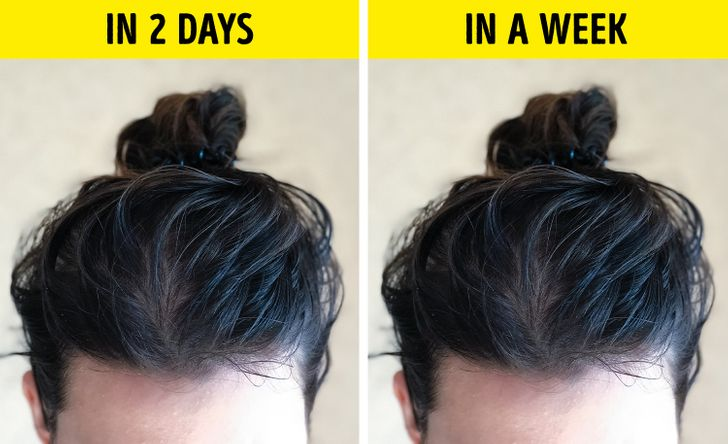 7 Reasons Why Hair Gets Greasy So Fast, and What Can You Do About It
