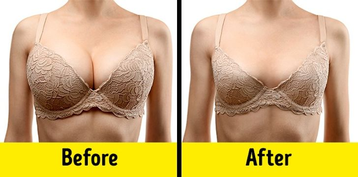 9Important Symptoms ofHormonal Imbalance That Harm Your Appearance