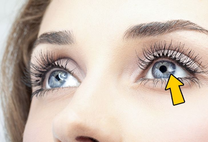 12 Things Your Eyes Can Tell About Your Health