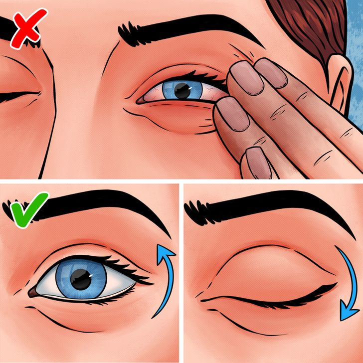 7 Ways to Safely Remove Something Stuck in Your Eye