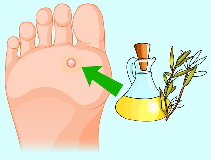 How to Remove Annoying Papillomas and Warts Once For All
