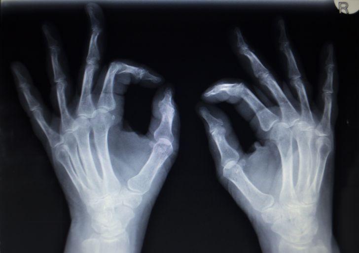 8 Zmeny v ľudskom tele, ktoré dokazujú, že sa stále vyvíjame