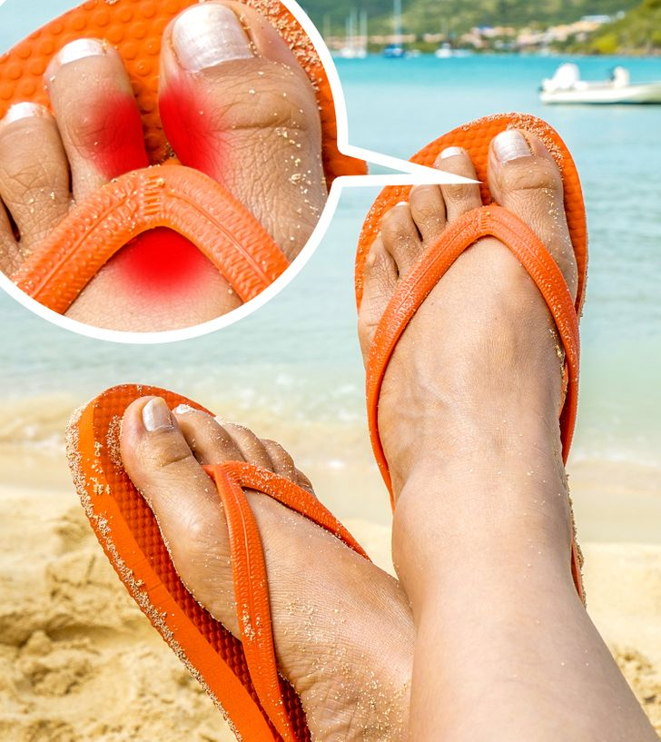10 Reasons to Ditch Your Flip-Flops Right Now for the Sake of Your Health