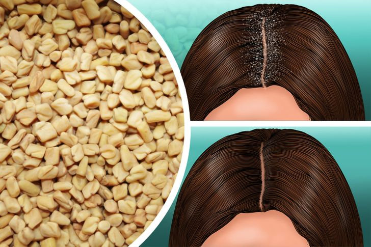 10 Ways to Stop Dandruff Without Using Chemicals