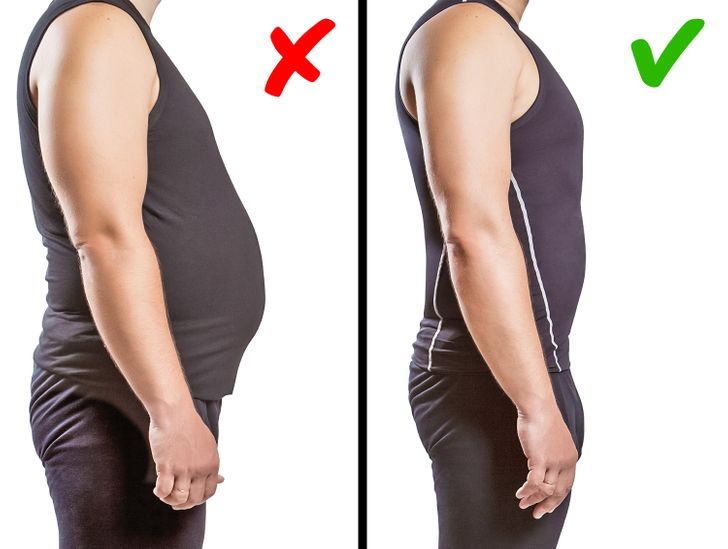 What Is Dowager's Hump and How to Fix It (It's Not Only About Your Posture)