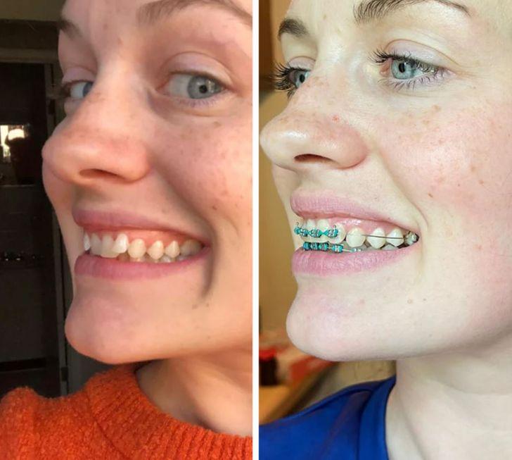Herkesin Dişlerinin Mükemmel Bir Gülüşe Dönüştürülebileceğini Kanıtlayan 15 Fotoğraf