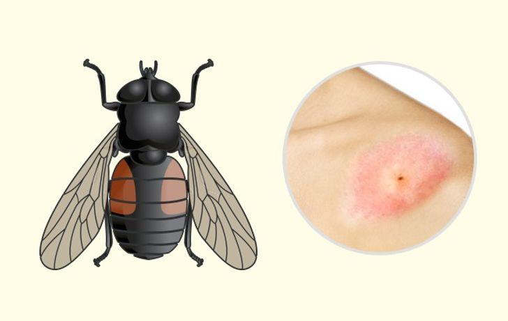 10Bug Bites Anyone Should BeAble toIdentify
