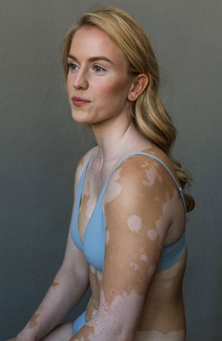 A Photographer With Vitiligo Captures the Beauty of Women With the Same Condition, and It's a Sight to Behold