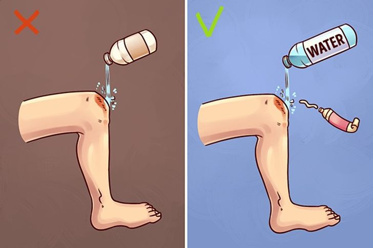 10Well-Known First Aid Methods That90% ofPeople Perform Incorrectly
